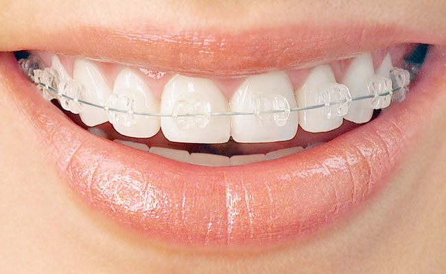 How much are clear braces a month for adults
